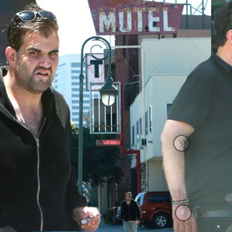jason walking on the street looking sickly and bruises in his hand