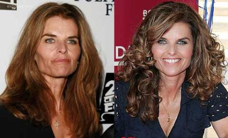 Apparently, as seen from her change in facial appearance, Maria Shriver must have undergone plastic surgery.
