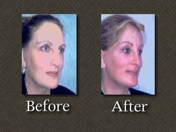 Before after plastic surgery photo of Linda-Tripp in 2008.