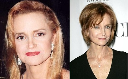 Swoosie Kurtz's before and after comparison for her plastic surgery rumors.