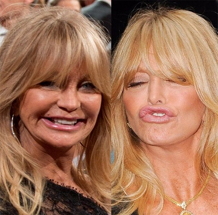 Another before and after comparison of Goldie Hawn's plastic surgery rumors.