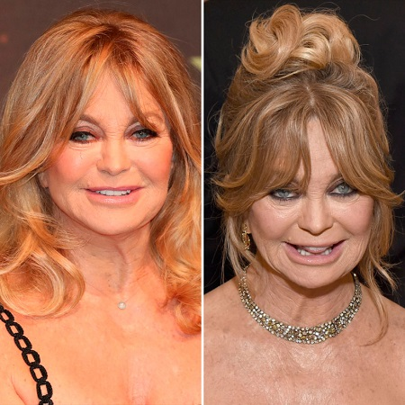 Before and after picture of Goldie Hawn's plastic surgery comparison.