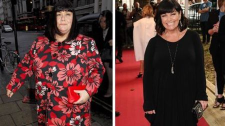 Dawn French needed undergo weight loss for her hysterectomy operation.