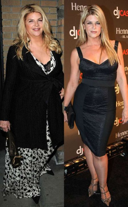 Kirstie Alley's before and after picture.