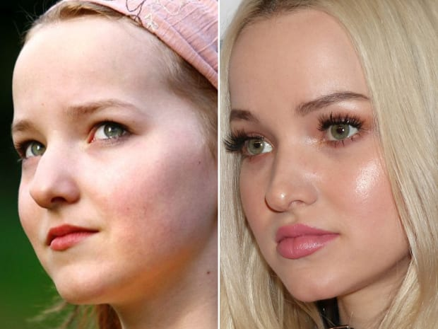 Dove Cameron has gone a tremendous transformation in her facial features over the years.