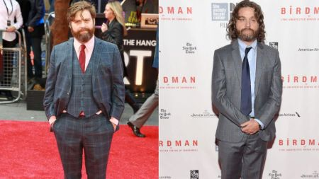 Zach Galifianakis lost 50 pounds of weight.