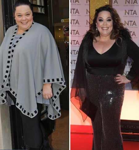 Mandy Dingle, Lisa Riley Weight Loss: Before and After.