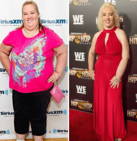 Mama June opted for gastric sleeve surgery in order to undergo weight loss.