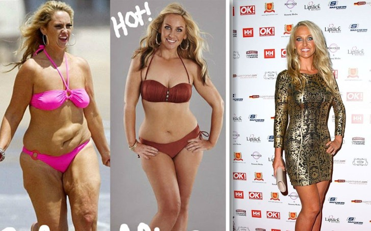 Here's What You Should Know About Josie Gibson's Incredible 6-Stone Weight Loss
