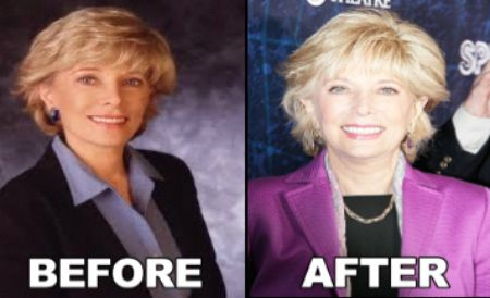 before and after photo of Lesley  Stahl after Plastic Surgery