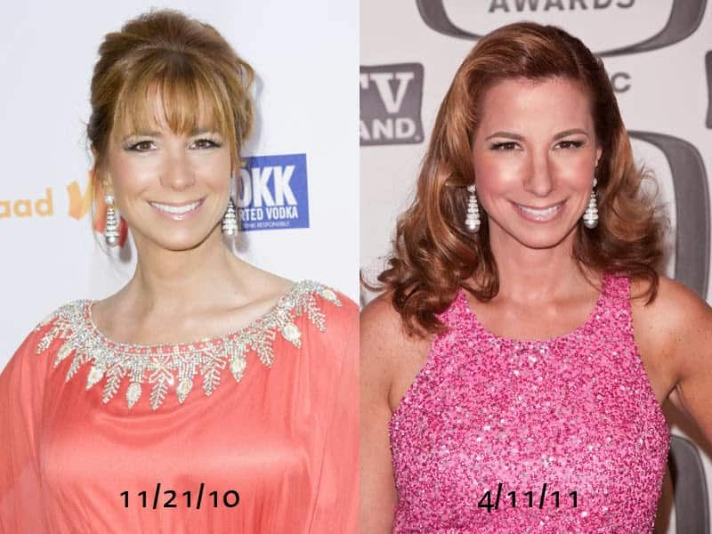 Pictures of Jill Zarin before and after plastic surgery.